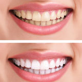 cosmetic-dentistry-services-richardson-tx