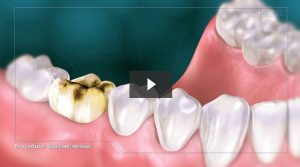 dental crown procedure video