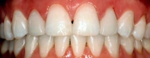 after take home teeth bleaching treatment richardson tx dentist