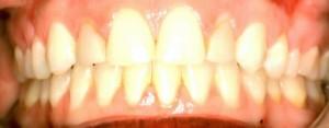 before take home teeth bleaching