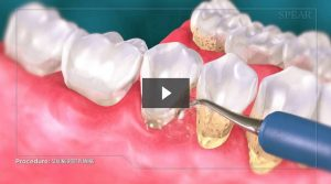 Dental Scaling and Root Planing Video