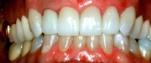 porcelain dental crowns on upper teeth by richardson tx dentist