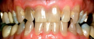 picture of upper teeth before crowns