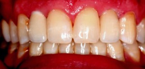 dental implants with custom crowns