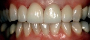 porcelain veneers on upper teeth richardson tx dentist