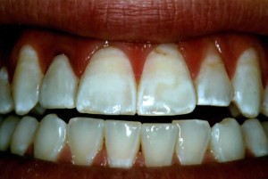 single dental veneer after done by richardson tx dentist