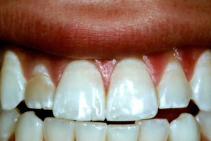 single dental veneer