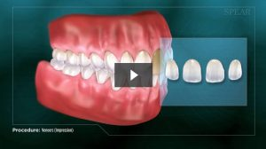 Dental Veneers Procedure Video