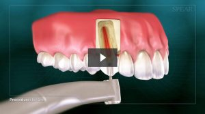 Root Canal Procedure Video